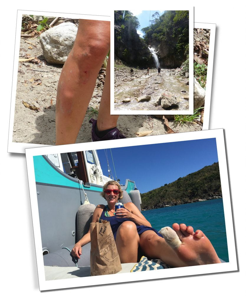 SueWhereWhyWhat - injuries, including a lumpy shin & bandaged toe during her 5 Month Self Tour of The Caribbean.